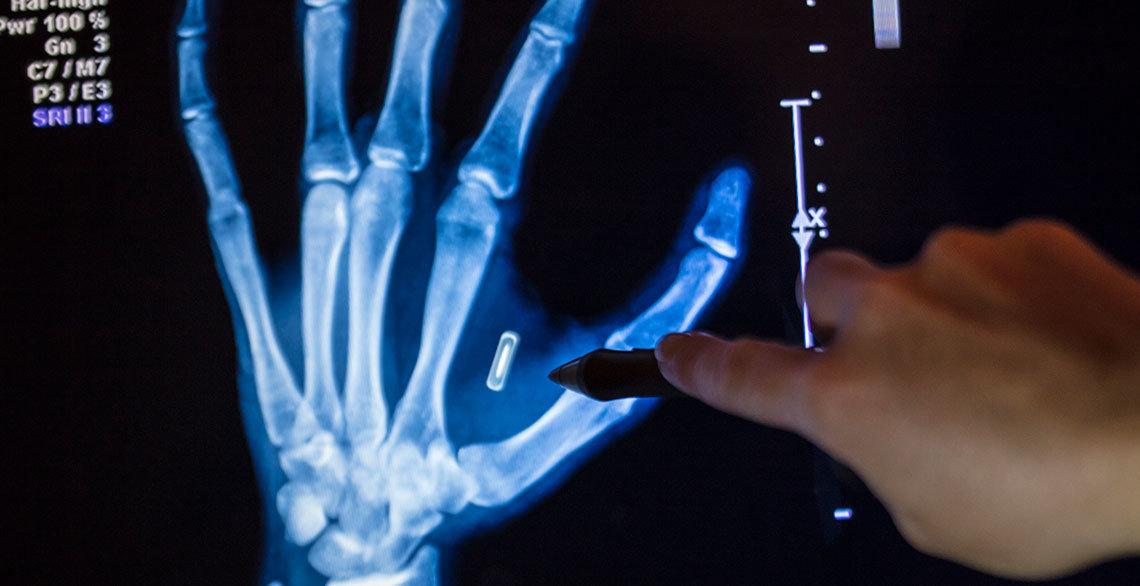 Würden Sie sich einen Chip unter die Haut implantieren lassen? | E ...
